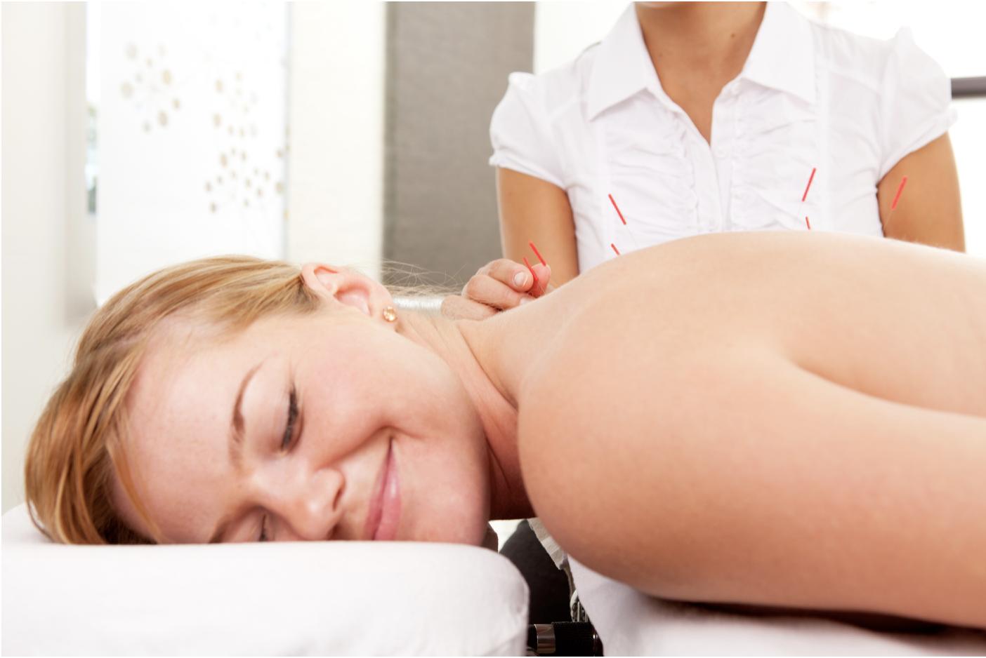 Hasil gambar untuk Feel Better With Acupuncture